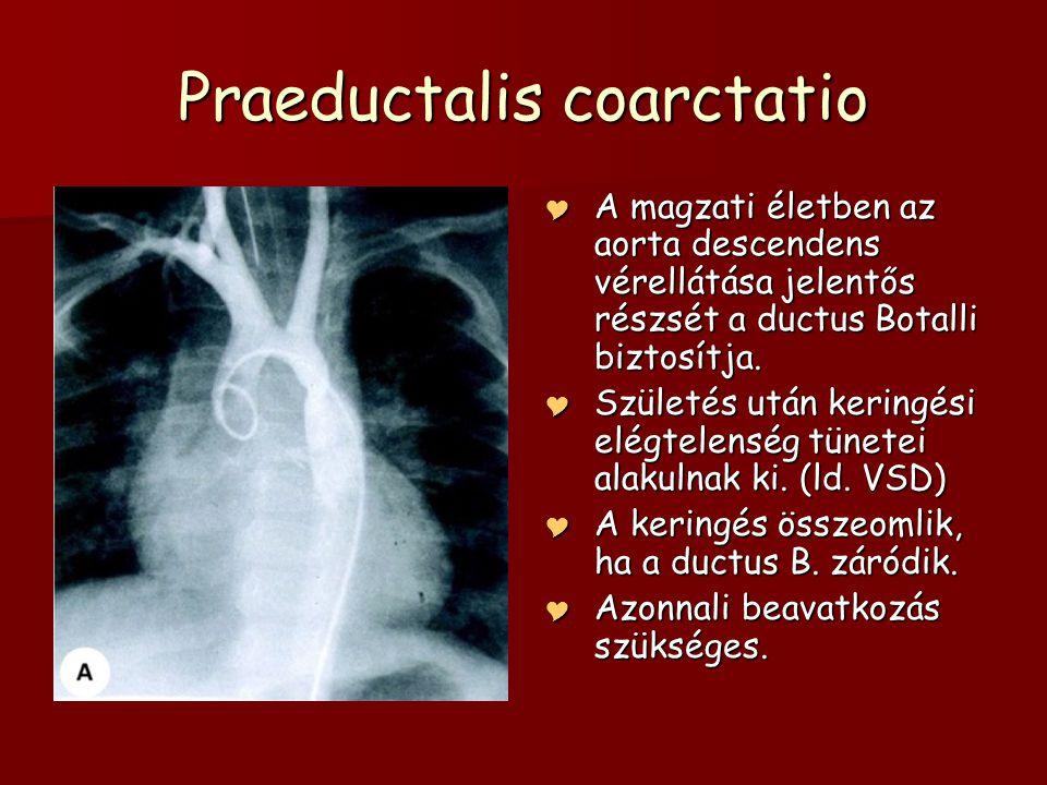 Praeductalis coarctatio  A magzati életben az aorta descendens vérellátása jelentős részsét a ductus Botalli biztosítja.  Születés után keringési el