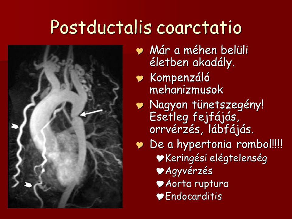Postductalis coarctatio  Már a méhen belüli életben akadály.  Kompenzáló mehanizmusok  Nagyon tünetszegény! Esetleg fejfájás, orrvérzés, lábfájás.