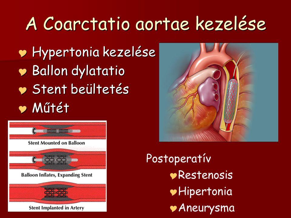 A Coarctatio aortae kezelése  Hypertonia kezelése  Ballon dylatatio  Stent beültetés  Műtét Postoperatív  Restenosis  Hipertonia  Aneurysma