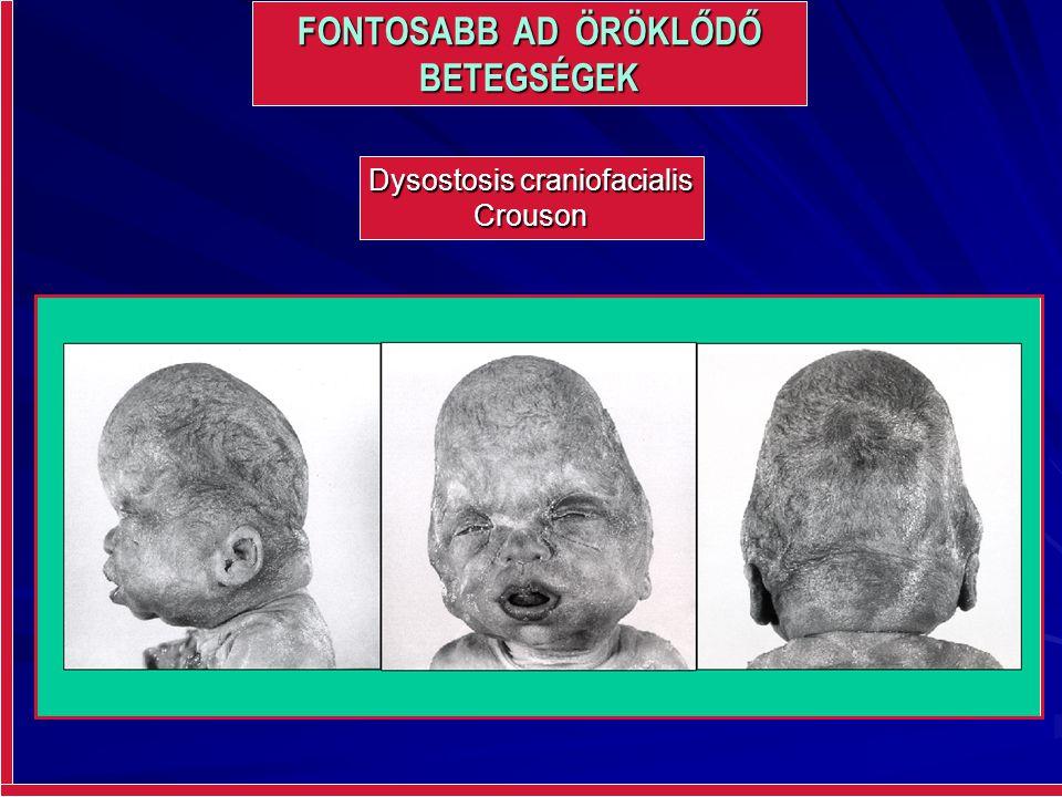 FONTOSABB AD ÖRÖKLŐDŐ BETEGSÉGEK Dysostosis craniofacialis Crouson