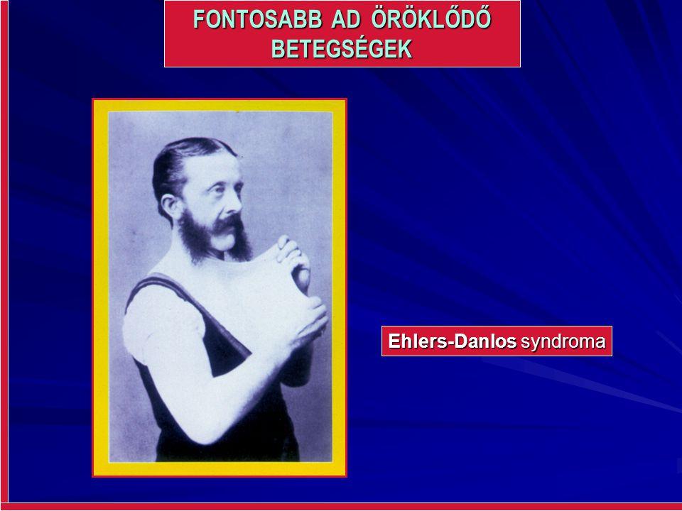 FONTOSABB AD ÖRÖKLŐDŐ BETEGSÉGEK Ehlers-Danlos syndroma