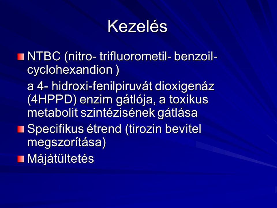Kezelés NTBC (nitro- trifluorometil- benzoil- cyclohexandion ) a 4- hidroxi-fenilpiruvát dioxigenáz (4HPPD) enzim gátlója, a toxikus metabolit szintéz