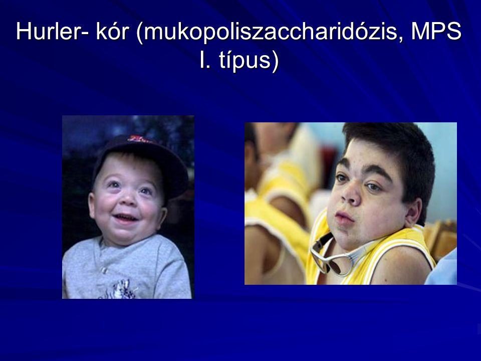 Hurler- kór (mukopoliszaccharidózis, MPS I. típus)