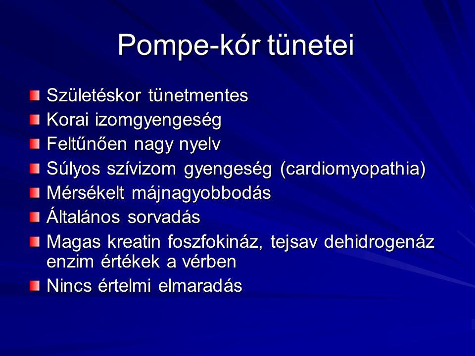 Pompe-kór tünetei Születéskor tünetmentes Korai izomgyengeség Feltűnően nagy nyelv Súlyos szívizom gyengeség (cardiomyopathia) Mérsékelt májnagyobbodá