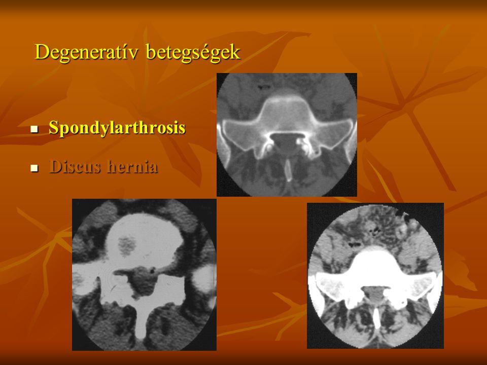 Degeneratív betegségek Spondylarthrosis Spondylarthrosis Discus hernia Discus hernia