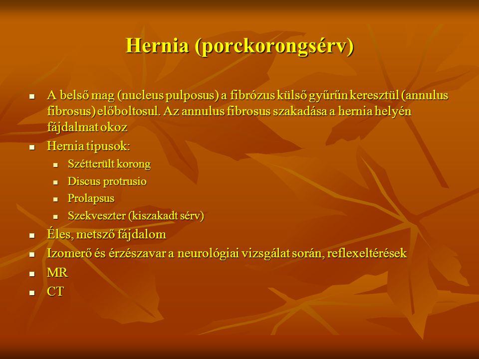 Hernia (porckorongsérv) A belső mag (nucleus pulposus) a fibrózus külső gyűrűn keresztül (annulus fibrosus) előboltosul. Az annulus fibrosus szakadása