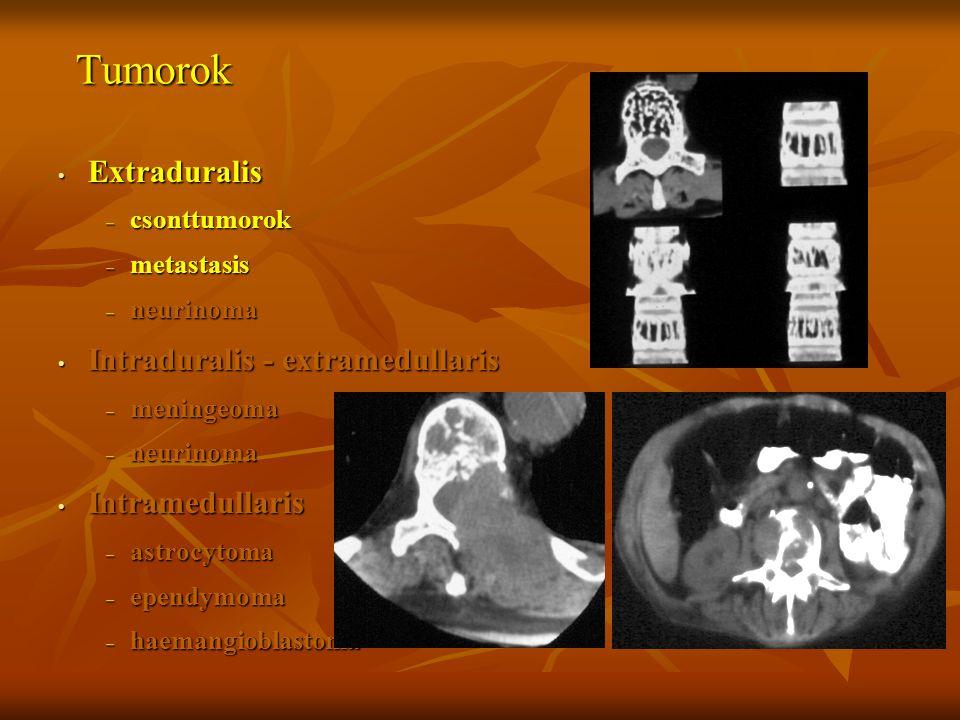 Tumorok Extraduralis – csonttumorok – metastasis – neurinoma Intraduralis - extramedullaris – meningeoma – neurinoma Intramedullaris – astrocytoma – e
