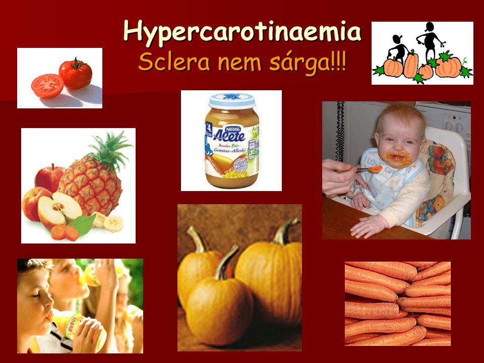 Hypercarotinaemia Sclera nem sárga!!!