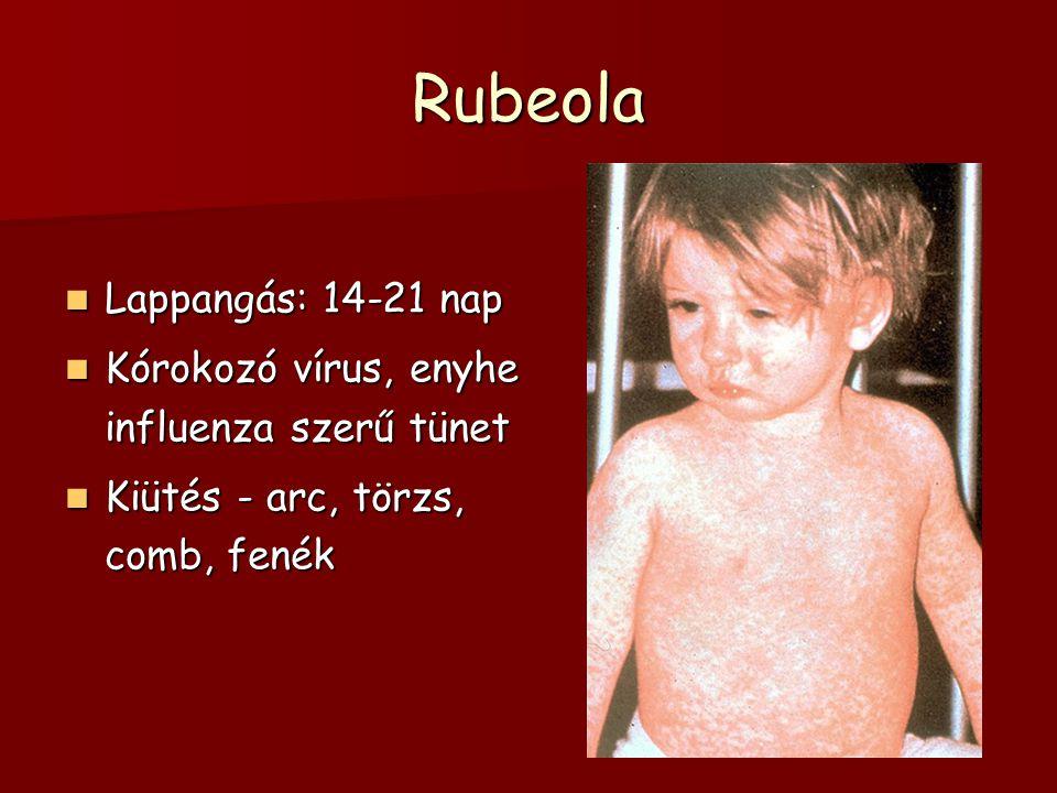 Rubeola Lappangás: 14-21 nap Lappangás: 14-21 nap Kórokozó vírus, enyhe influenza szerű tünet Kórokozó vírus, enyhe influenza szerű tünet Kiütés - arc, törzs, comb, fenék Kiütés - arc, törzs, comb, fenék