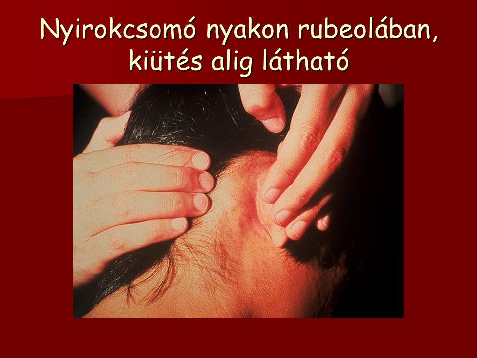 Nyirokcsomó nyakon rubeolában, kiütés alig látható