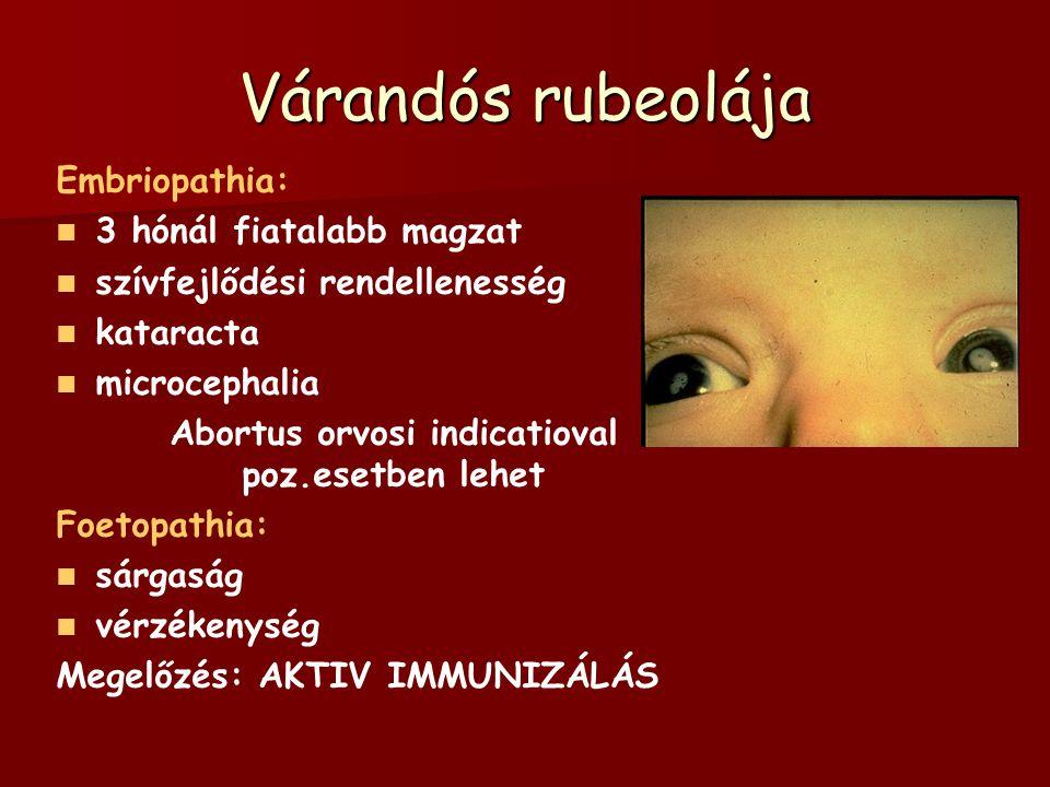 Várandós rubeolája Embriopathia: 3 hónál fiatalabb magzat szívfejlődési rendellenesség kataracta microcephalia Abortus orvosi indicatioval poz.esetben lehet Foetopathia: sárgaság vérzékenység Megelőzés: AKTIV IMMUNIZÁLÁS