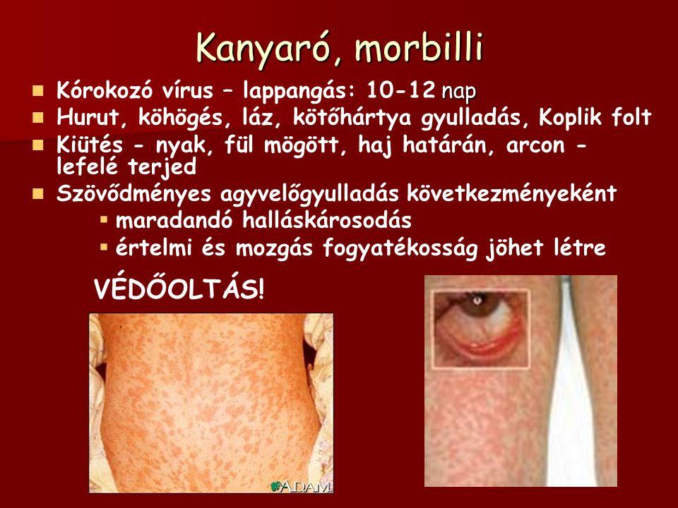Kanyaró, morbilli nap Kórokozó vírus – lappangás: 10-12 nap Hurut, köhögés, láz, kötőhártya gyulladás, Koplik folt Kiütés - nyak, fül mögött, haj határán, arcon - lefelé terjed Szövődményes agyvelőgyulladás következményeként   maradandó halláskárosodás   értelmi és mozgás fogyatékosság jöhet létre VÉDŐOLTÁS!