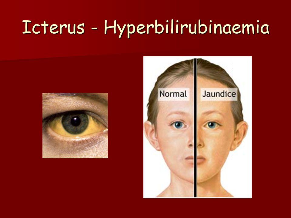 Újszülöttkori icterus Megszületés után megszűnik a relatív hypoxia.