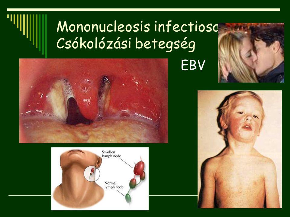 Mononucleosis infectiosa Csókolózási betegség EBV