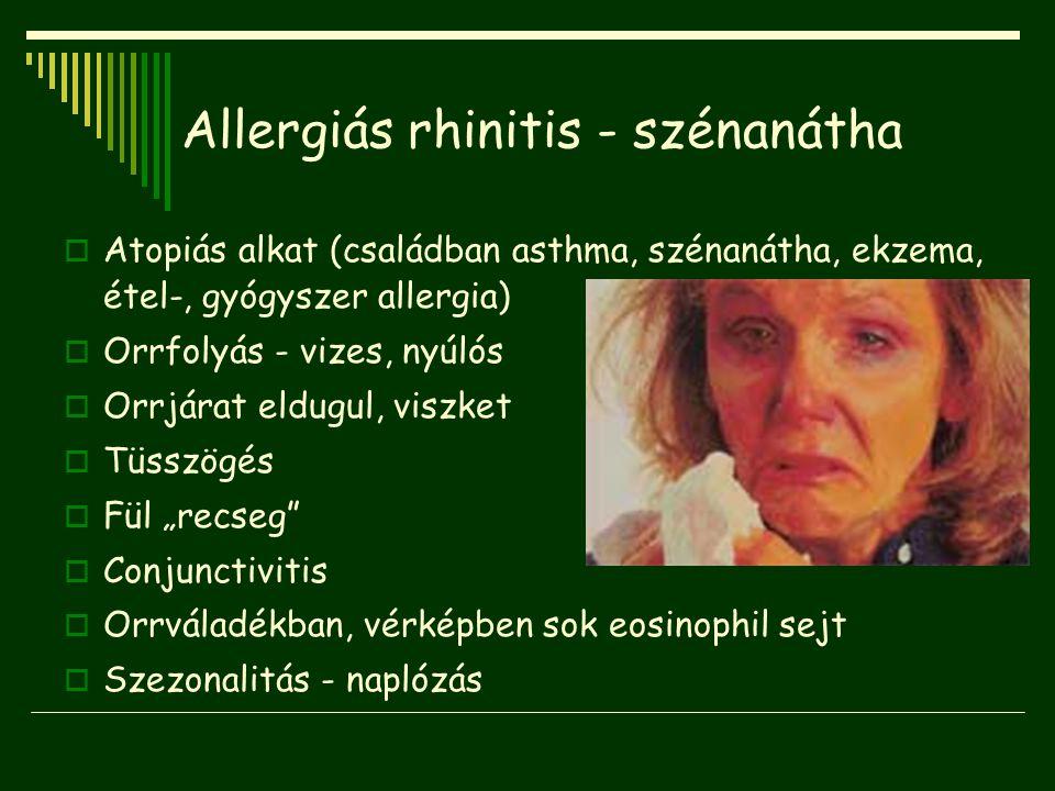 Allergiás rhinitis - szénanátha  Atopiás alkat (családban asthma, szénanátha, ekzema, étel-, gyógyszer allergia)  Orrfolyás - vizes, nyúlós  Orrjár