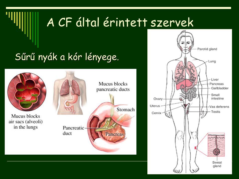 A CF által érintett szervek Sűrű nyák a kór lényege.
