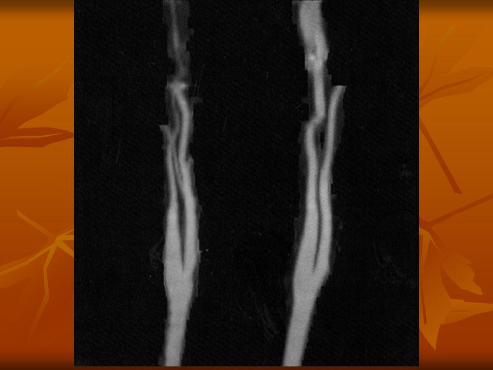 A CTA leggyakoribb alkalmazása dissectio esetén a CTA pontos választ ad: - dissectio fennáll vagy nem - a dissectio kiterjedése, típusa - kettős lumen megléte - pericardium érintettsége - supraaorticus ágak érintettsége - visceralis ágak érintettsége - ruptura occlusio esetén a CTA pontos választ ad az elzáródás helyére, collateralis keringés kialakulására, a parenchyma károsodására