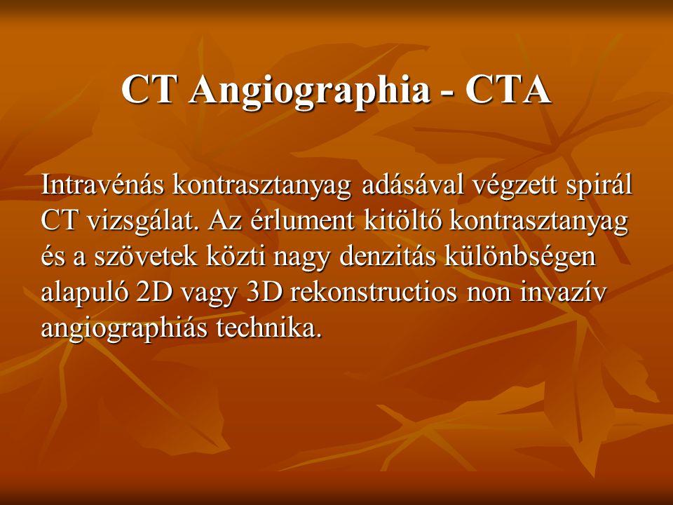 CT Angiographia - CTA Intravénás kontrasztanyag adásával végzett spirál CT vizsgálat. Az érlument kitöltő kontrasztanyag és a szövetek közti nagy denz
