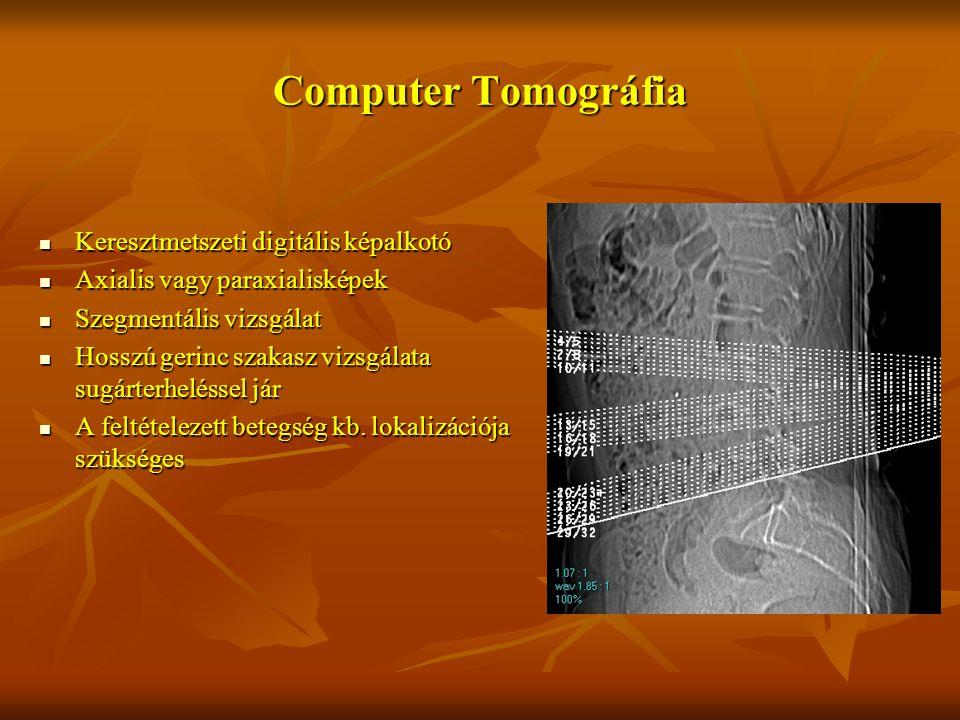 Computer Tomográfia Keresztmetszeti digitális képalkotó Keresztmetszeti digitális képalkotó Axialis vagy paraxialisképek Axialis vagy paraxialisképek Szegmentális vizsgálat Szegmentális vizsgálat Hosszú gerinc szakasz vizsgálata sugárterheléssel jár Hosszú gerinc szakasz vizsgálata sugárterheléssel jár A feltételezett betegség kb.