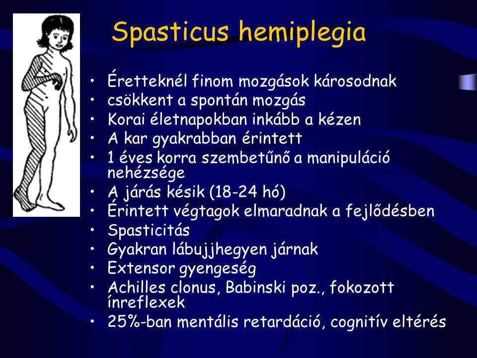 Spasticus hemiplegia Éretteknél finom mozgások károsodnak csökkent a spontán mozgás Korai életnapokban inkább a kézen A kar gyakrabban érintett 1 éves