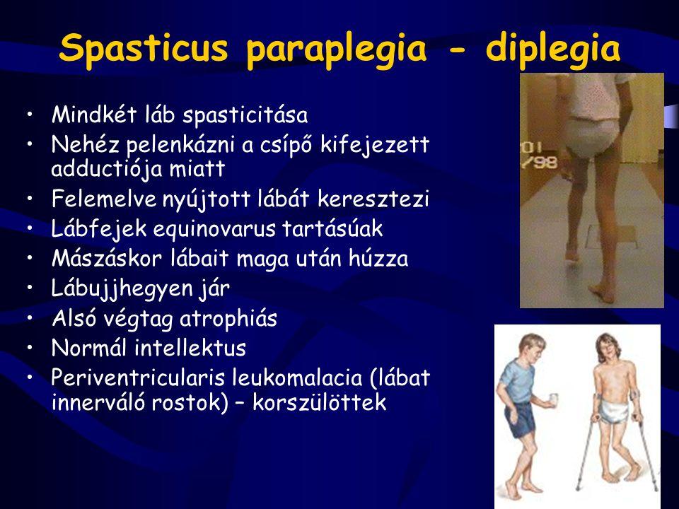 Spasticus paraplegia - diplegia Mindkét láb spasticitása Nehéz pelenkázni a csípő kifejezett adductiója miatt Felemelve nyújtott lábát keresztezi Lábf
