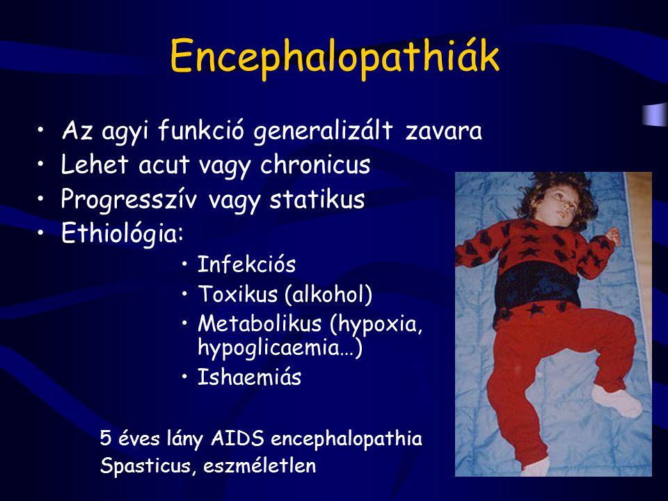 Spinális izomatrophiák Ok: melső szarvi motoneuron degenerálódása petyhüdt paresis, alsó végtagon kezdődik, proximális túlsúlyú, súlyos esetben areflexia Werdnig - Hoffman - 3-4 hónaposan, esetleg már újszülött korban kezdődik - figyel, táplálható, de gyengén sír, békatartás, fejét, lábát nem tudja emelni