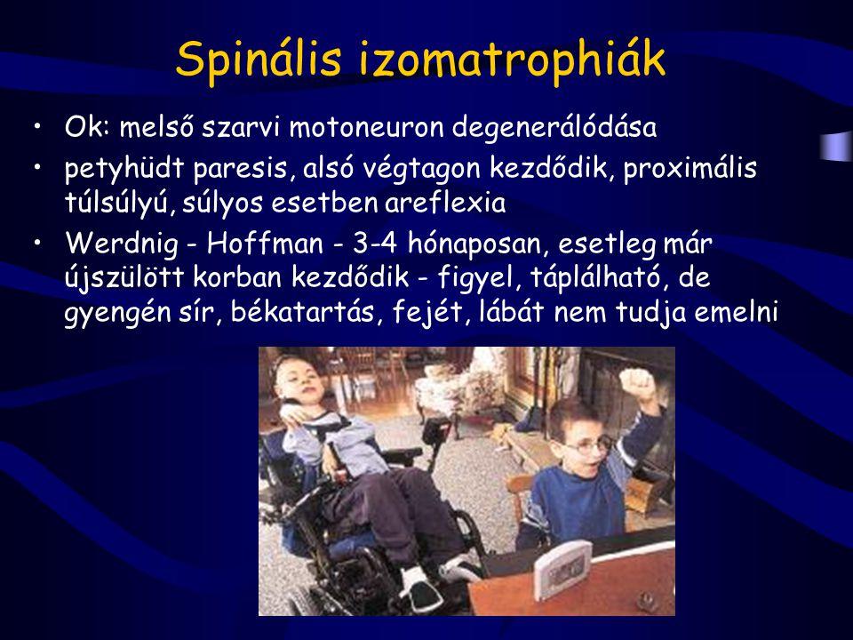 Spinális izomatrophiák Ok: melső szarvi motoneuron degenerálódása petyhüdt paresis, alsó végtagon kezdődik, proximális túlsúlyú, súlyos esetben arefle