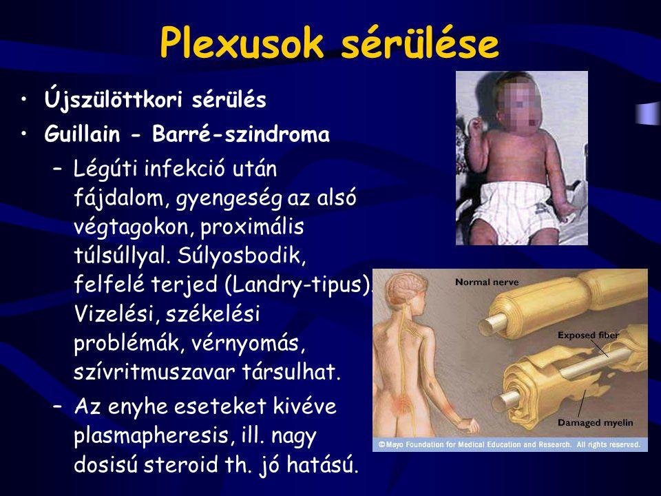 Plexusok sérülése Újszülöttkori sérülés Guillain - Barré-szindroma –Légúti infekció után fájdalom, gyengeség az alsó végtagokon, proximális túlsúllyal