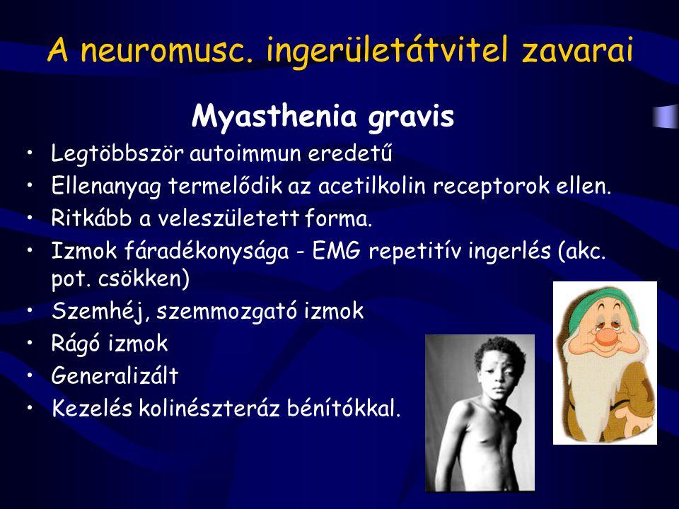 A neuromusc. ingerületátvitel zavarai Myasthenia gravis Legtöbbször autoimmun eredetű Ellenanyag termelődik az acetilkolin receptorok ellen. Ritkább a