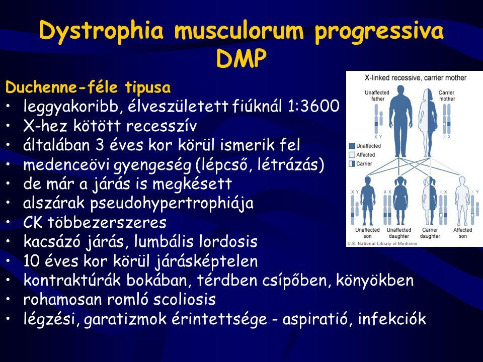 Dystrophia musculorum progressiva DMP Duchenne-féle tipusa leggyakoribb, élveszületett fiúknál 1:3600 X-hez kötött recesszív általában 3 éves kor körü