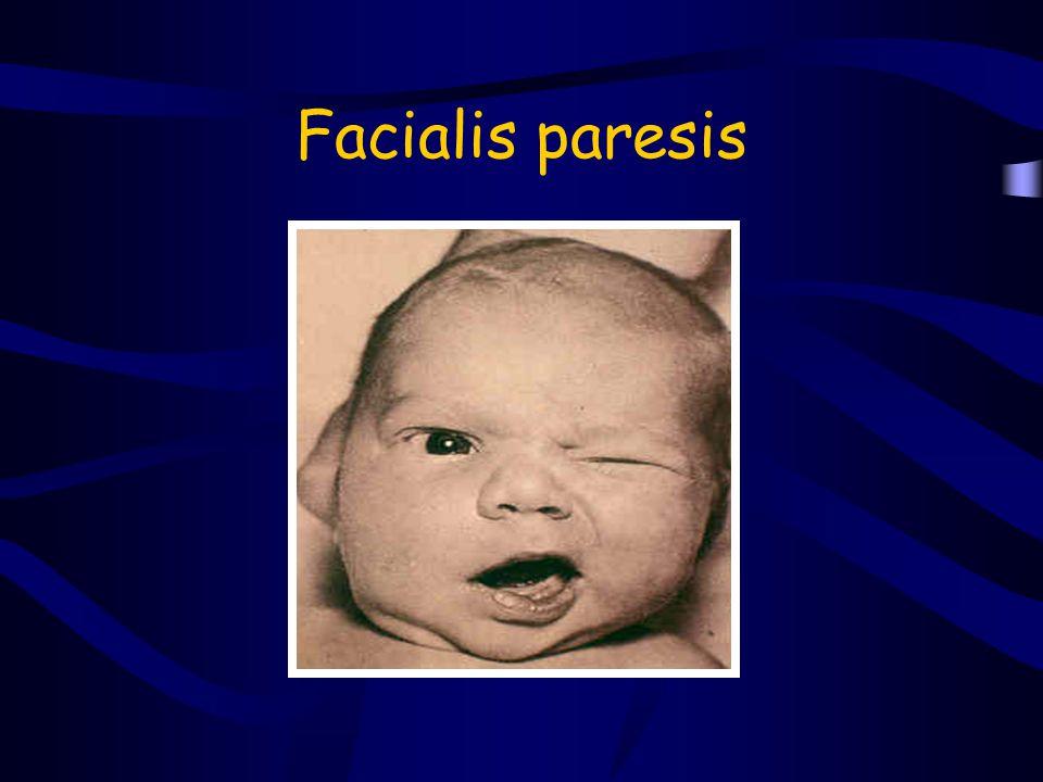 Facialis paresis