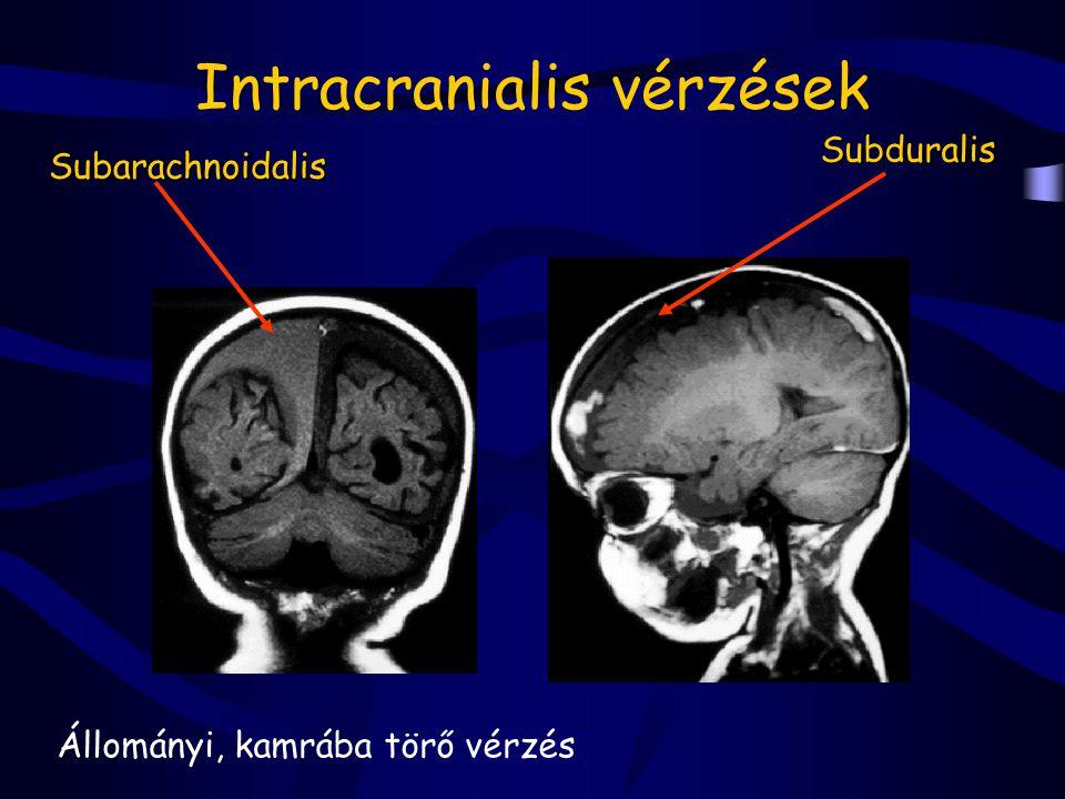 Intracranialis vérzések Állományi, kamrába törő vérzés Subarachnoidalis Subduralis