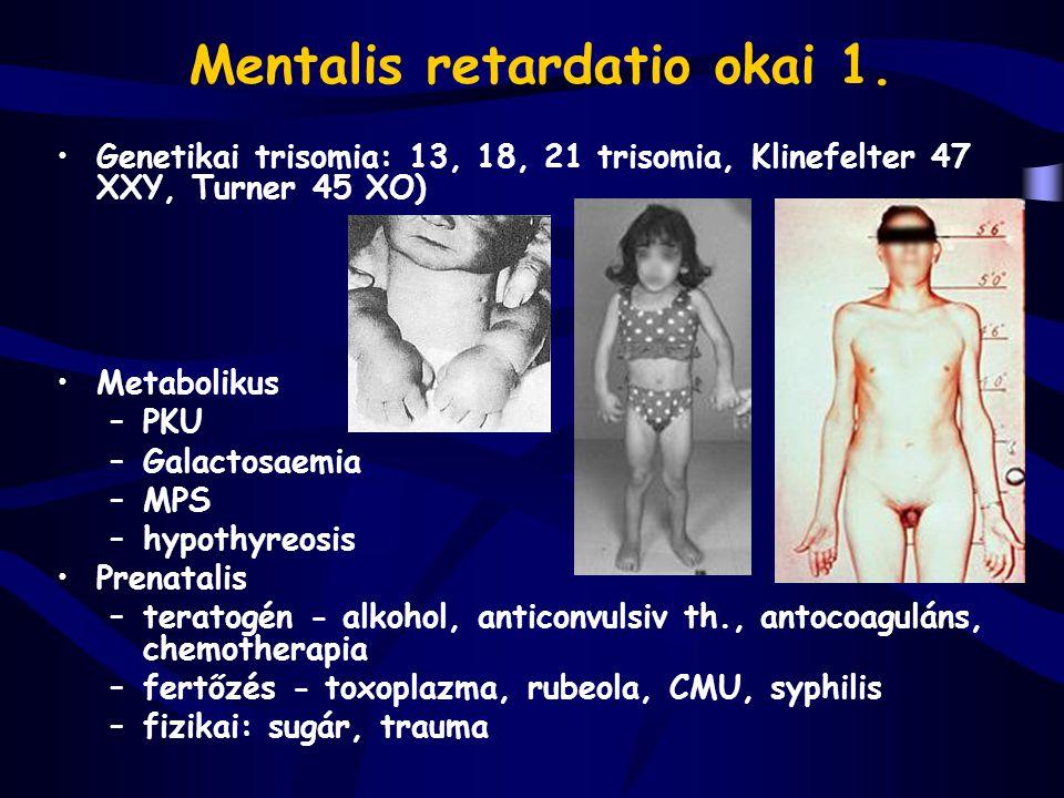 Mentalis retardatio okai 1. Genetikai trisomia: 13, 18, 21 trisomia, Klinefelter 47 XXY, Turner 45 XO) Metabolikus –PKU –Galactosaemia –MPS –hypothyre