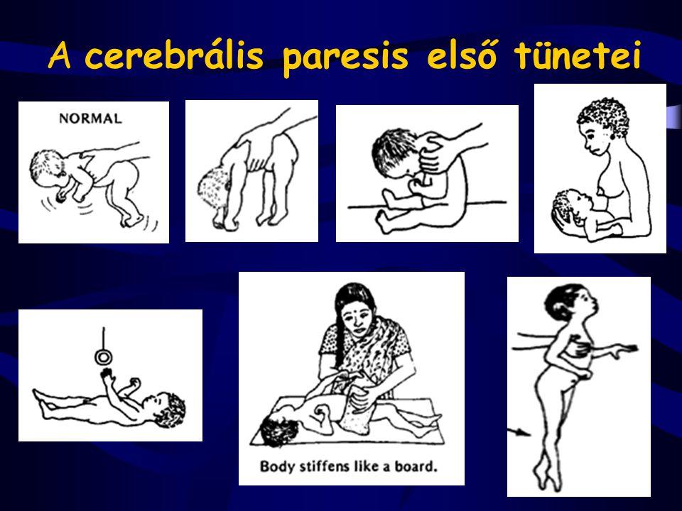 Anencephalia