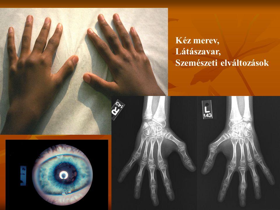 Kéz merev, Látászavar, Szemészeti elváltozások