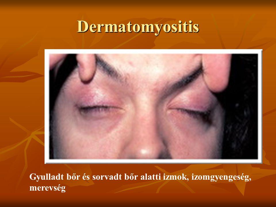 Dermatomyositis Gyulladt bőr és sorvadt bőr alatti izmok, izomgyengeség, merevség