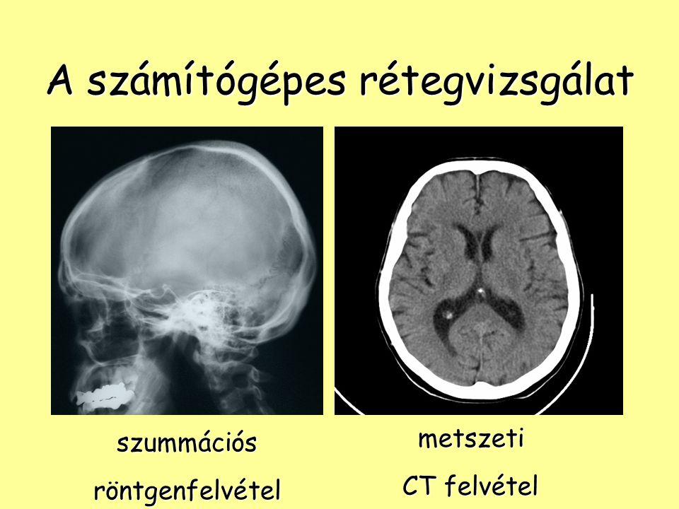 A számítógépes rétegvizsgálat szummációsröntgenfelvétel metszeti CT felvétel