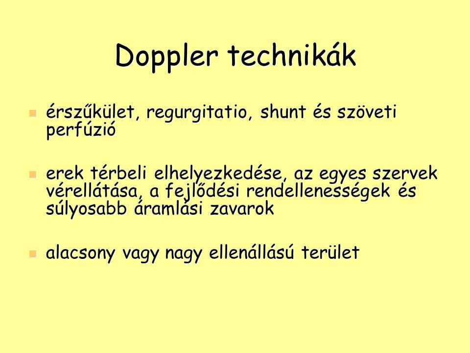 Doppler technikák érszűkület, regurgitatio, shunt és szöveti perfúzió érszűkület, regurgitatio, shunt és szöveti perfúzió erek térbeli elhelyezkedése,