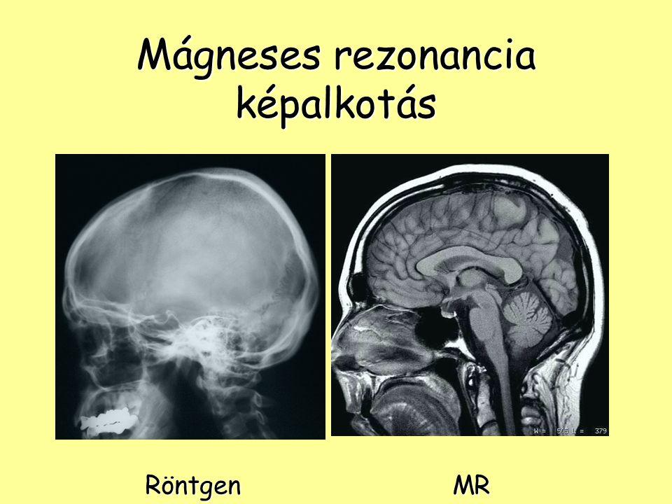 Mágneses rezonancia képalkotás RöntgenMR