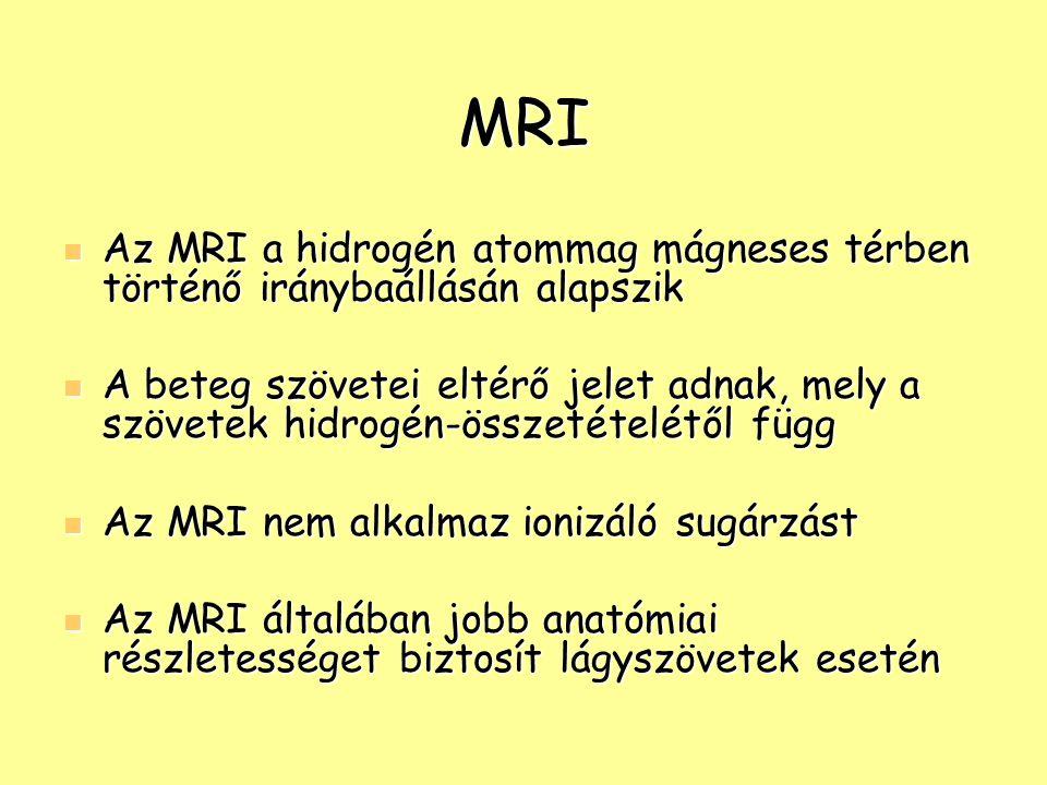 MRI Az MRI a hidrogén atommag mágneses térben történő iránybaállásán alapszik Az MRI a hidrogén atommag mágneses térben történő iránybaállásán alapszi