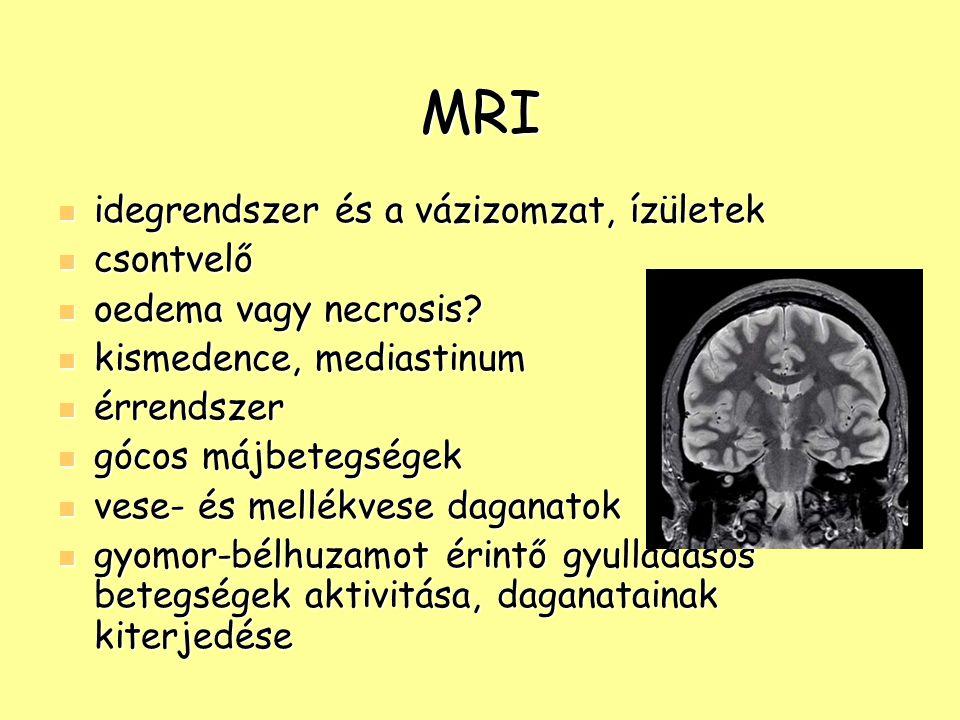 MRI idegrendszer és a vázizomzat, ízületek idegrendszer és a vázizomzat, ízületek csontvelő csontvelő oedema vagy necrosis? oedema vagy necrosis? kism