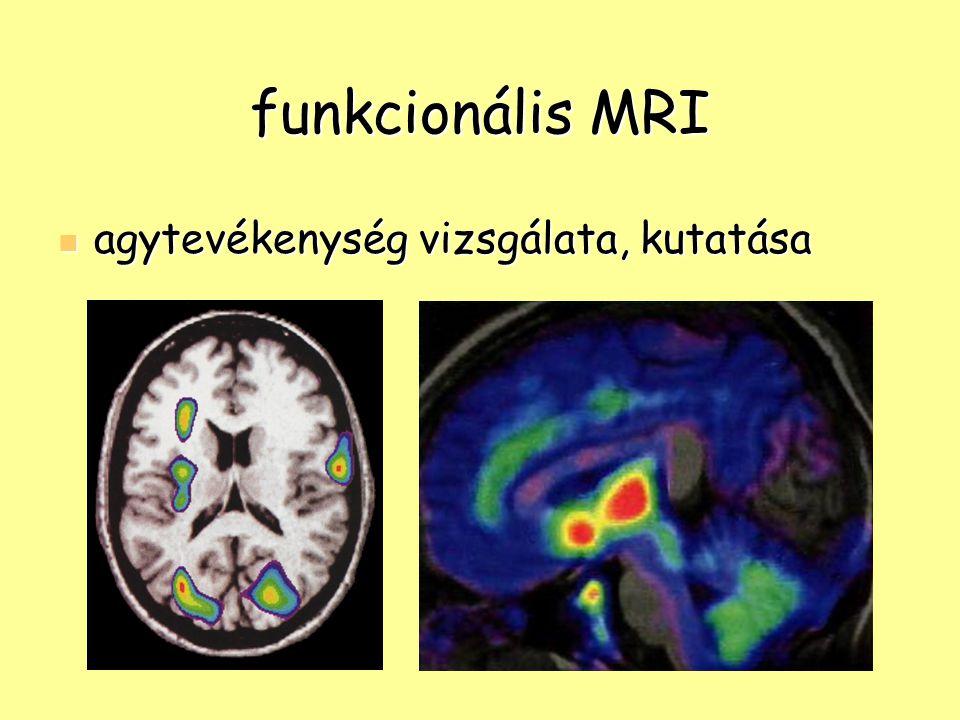 funkcionális MRI agytevékenység vizsgálata, kutatása agytevékenység vizsgálata, kutatása