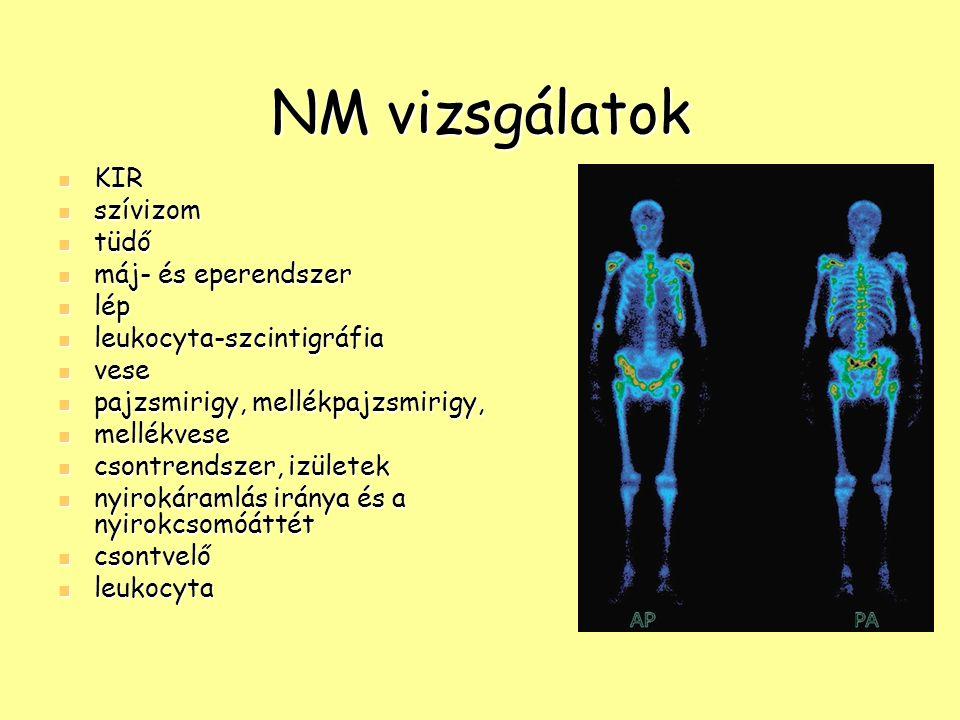 NM vizsgálatok KIR KIR szívizom szívizom tüdő tüdő máj- és eperendszer máj- és eperendszer lép lép leukocyta-szcintigráfia leukocyta-szcintigráfia ves