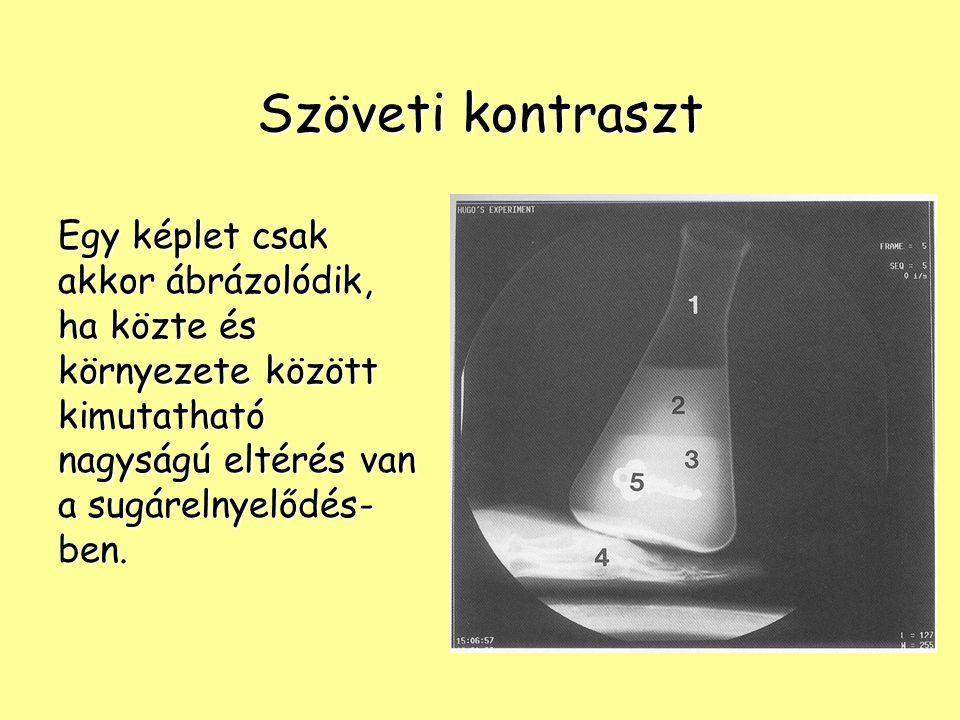 A sugárelnyelődést befolyásoló tényezők a röntgensugárzás hullámhossza (λ) a röntgensugárzás hullámhossza (λ) a besugárzott anyag rendszáma (Z) a besugárzott anyag rendszáma (Z) a besugárzott anyag sűrűsége (D) a besugárzott anyag sűrűsége (D) a besugárzott anyag rétegvastagsága (d) a besugárzott anyag rétegvastagsága (d)