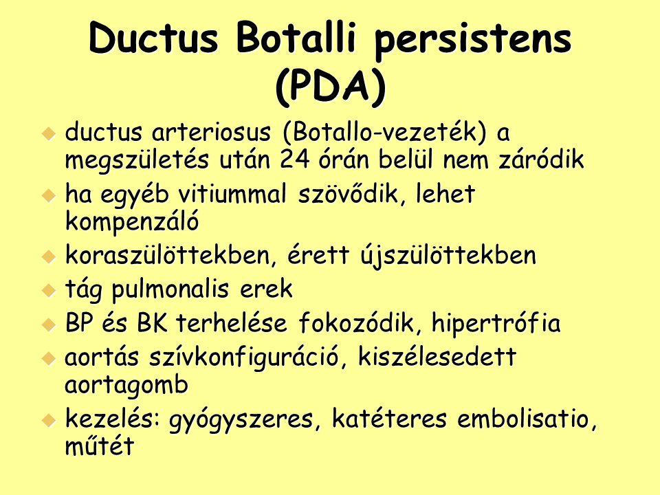 Ductus Arteriosus Botalli Ductus Botalli Persistens