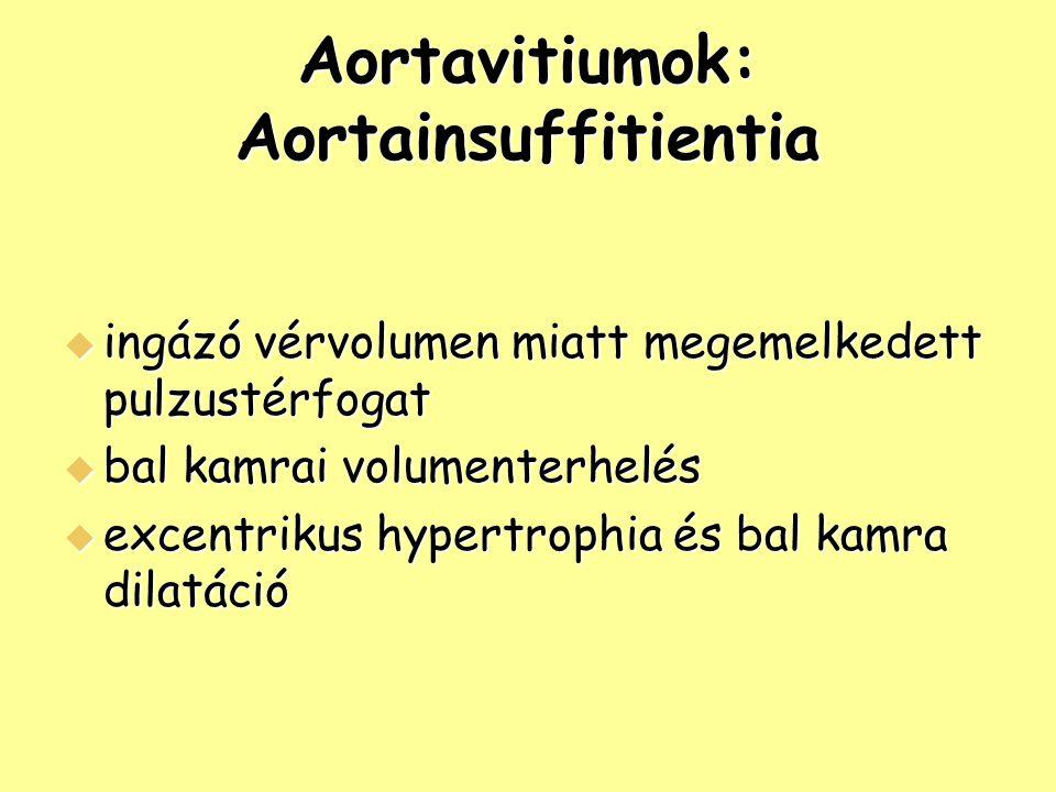 Aortavitiumok: Aortainsuffitientia  ingázó vérvolumen miatt megemelkedett pulzustérfogat  bal kamrai volumenterhelés  excentrikus hypertrophia és b