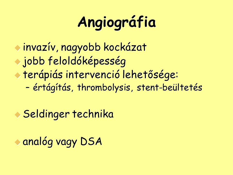 Angiográfia  invazív, nagyobb kockázat  jobb feloldóképesség  terápiás intervenció lehetősége: –értágítás, thrombolysis, stent-beültetés  Seldinge