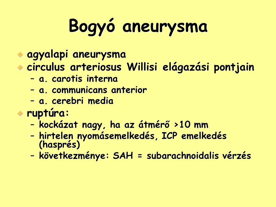 Bogyó aneurysma  agyalapi aneurysma  circulus arteriosus Willisi elágazási pontjain –a. carotis interna –a. communicans anterior –a. cerebri media 