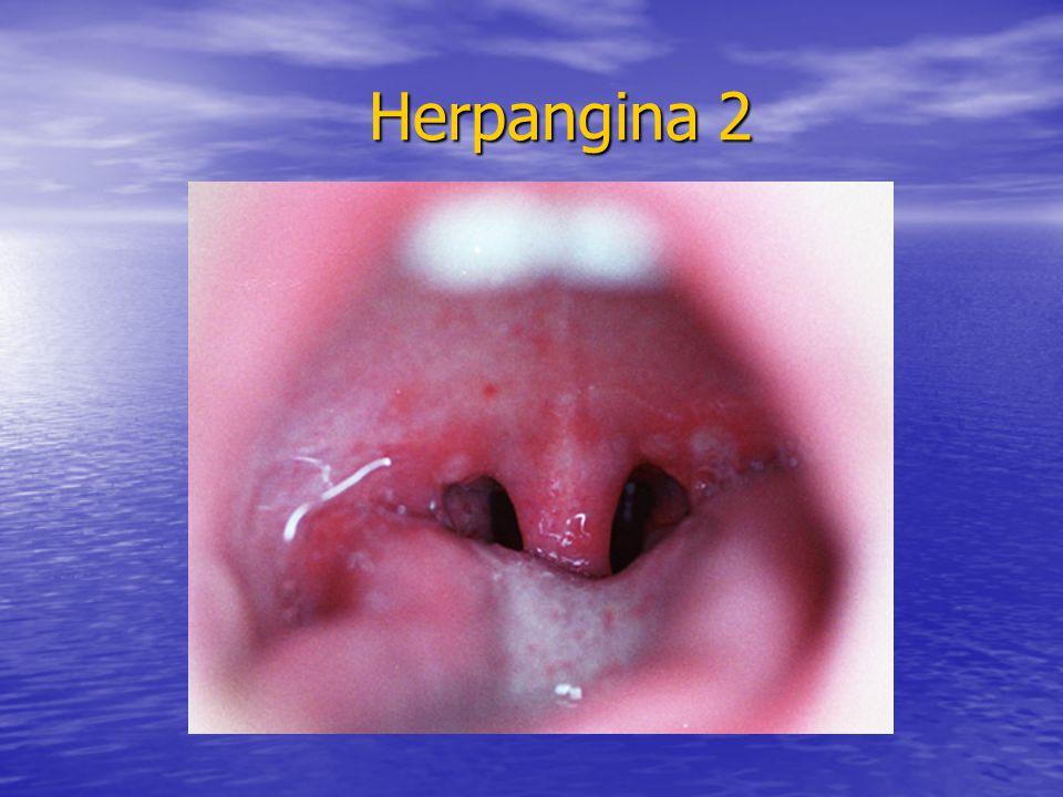 Herpangina 2 Herpangina 2