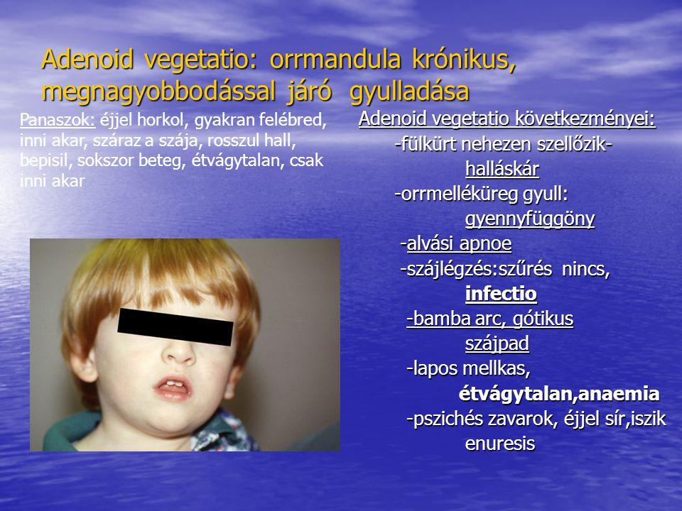Adenoid vegetatio: orrmandula krónikus, megnagyobbodással járó gyulladása Adenoid vegetatio következményei: -fülkürt nehezen szellőzik- -fülkürt nehezen szellőzik- halláskár halláskár -orrmelléküreg gyull: -orrmelléküreg gyull: gyennyfüggöny gyennyfüggöny -alvási apnoe -alvási apnoe -szájlégzés:szűrés nincs, -szájlégzés:szűrés nincs, infectio infectio -bamba arc, gótikus -bamba arc, gótikus szájpad szájpad -lapos mellkas, -lapos mellkas, étvágytalan,anaemia étvágytalan,anaemia -pszichés zavarok, éjjel sír,iszik -pszichés zavarok, éjjel sír,iszik enuresis enuresis Panaszok: éjjel horkol, gyakran felébred, inni akar, száraz a szája, rosszul hall, bepisil, sokszor beteg, étvágytalan, csak inni akar